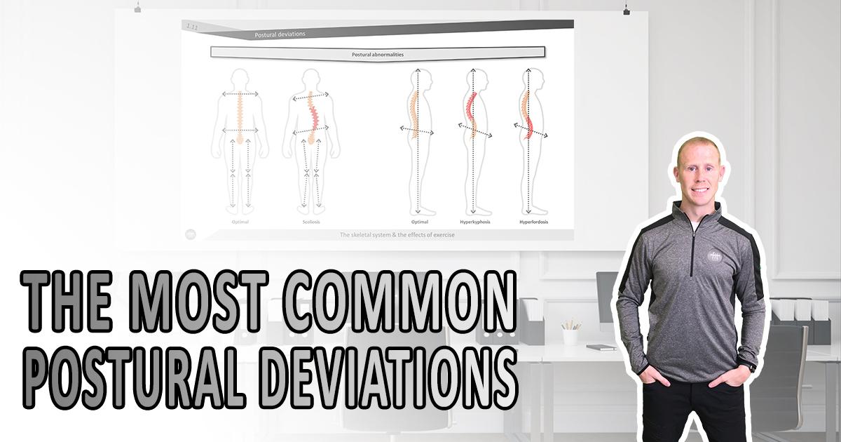 Common postural deviations